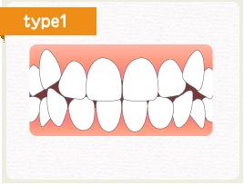 八重歯が目立つ
